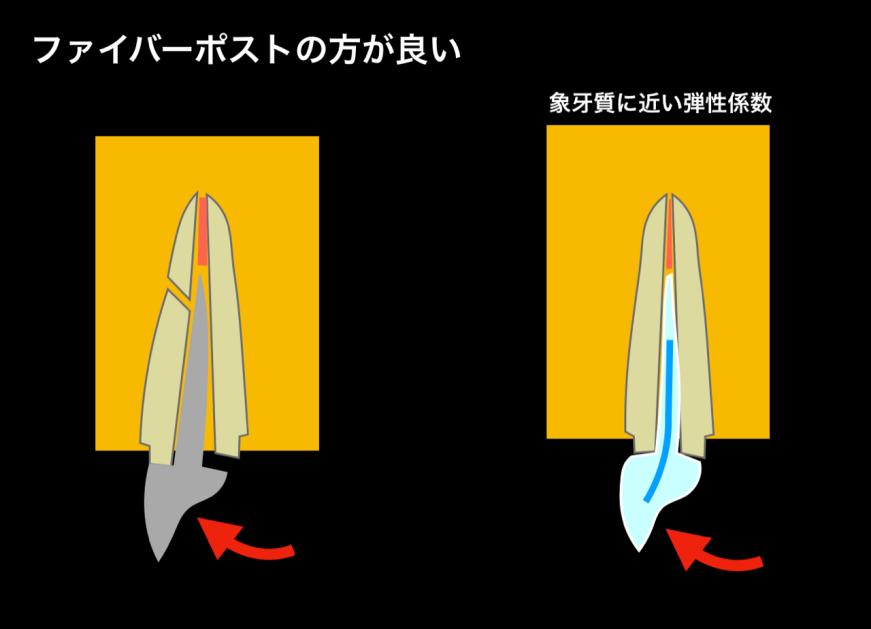 レジン築造の咀嚼時における応力分布に関する研究1
