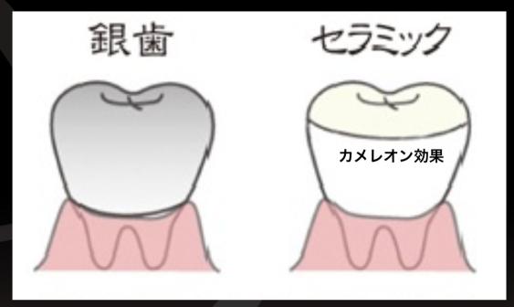 銀歯 セラミック