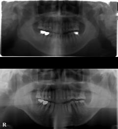 2006年奥歯