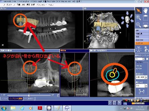 下の写真を見るとこのシュミレーションを使用して手術を行えば少し斜めに植え込みをすれば10mmの長さのインプラントが使用可能になることが分かります。