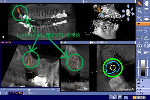 審美的にも満足のいく歯牙の中央に インプラントがきているのがわかります
