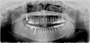 まったく見えない上顎の奥歯で角度付きに植え込みの術式を選択しました。