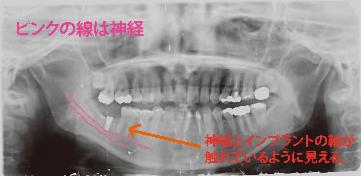 2次元では触れているように見えて行えないぎりぎりの手術でも、CTを使えば、安全に行うことができるのです。