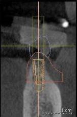 2. 4mmの骨幅に3.8mm幅のインプラントを計画。